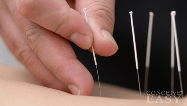 Acupuncture for Fertility Treatment