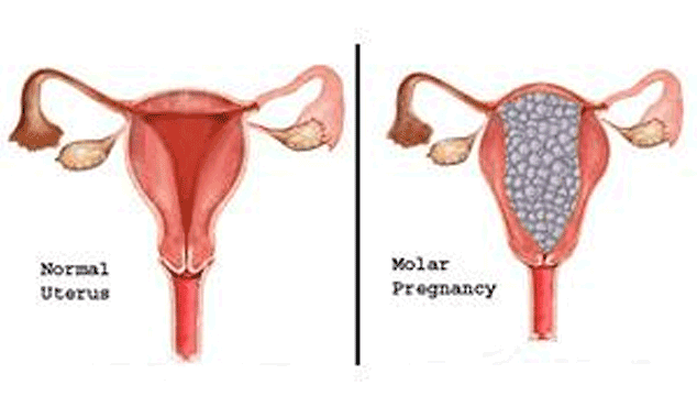 Difficulty Getting Pregnant after Ectopic Pregnancy