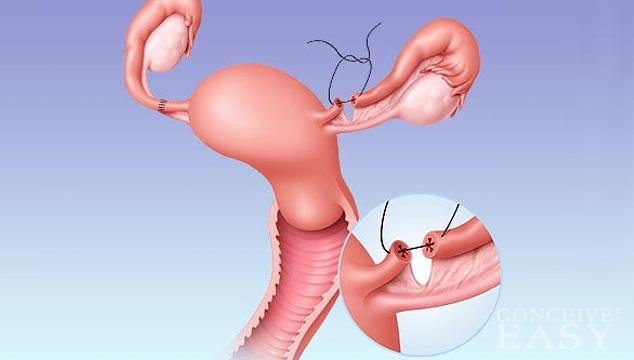 A Woman Getting Pregnant 38