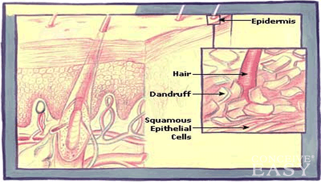 How to Treat Children's Dry Scalp