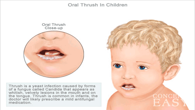 oral thrush in toddlers
