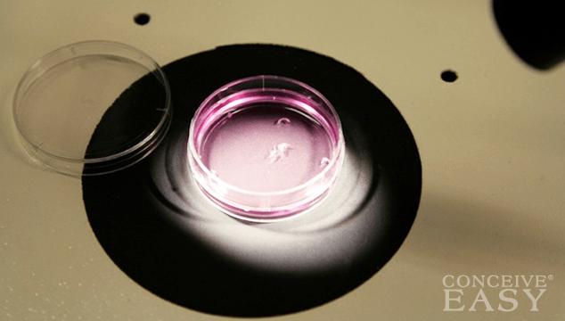 Clomid intrauterine insemination success