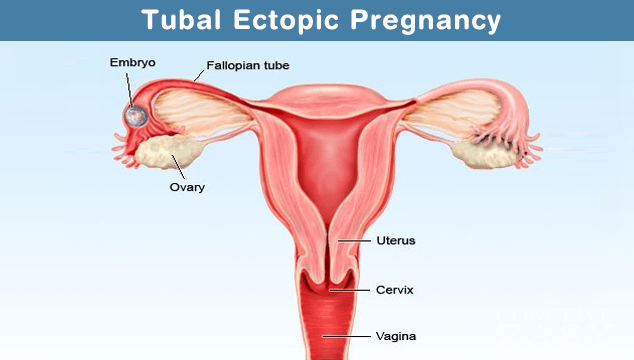 Treatment for Ectopic Pregnancy