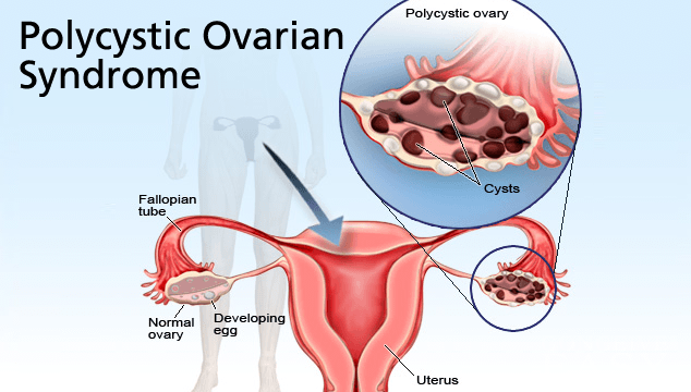Polycystic Ovarian Syndrome and its negative effects to fertility