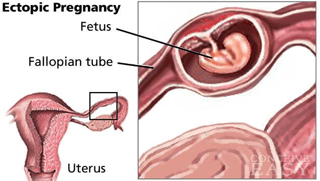 Ectopic (Tubal) Pregnancy Causes, Symptoms and Treatments