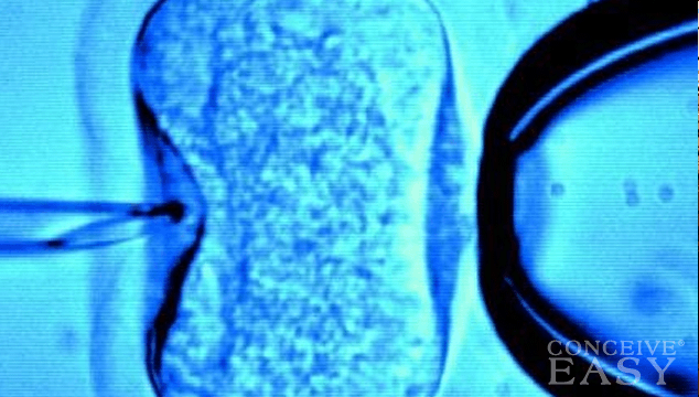 Alternatives to In Vitro Fertilization (IVF)