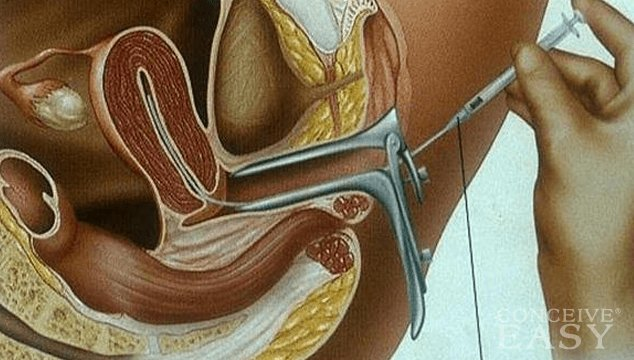 Intrauterine Insemination or Artificial Insemination