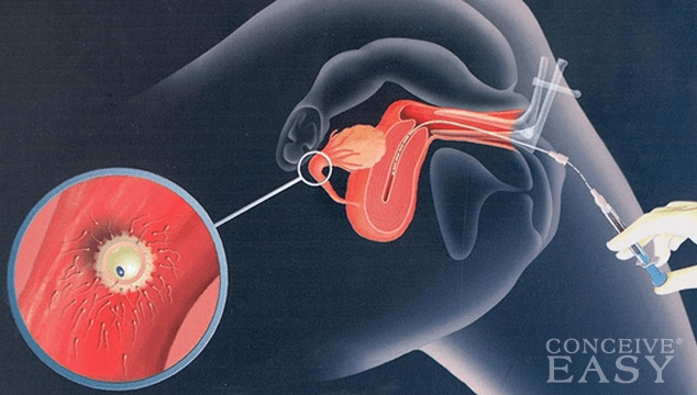 What is Intrauterine Insemination (IUI)?