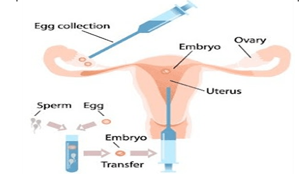 Guidelines on Egg, Sperm, and Embryo Donation