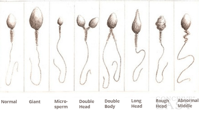 Abnormal Sperm Morphology and Male Infertility