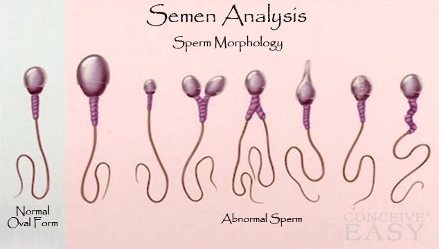 Treatment Options for Low Sperm Motility