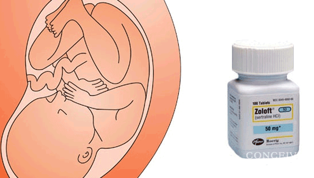 Can Zoloft Harm a Baby While Pregnant?