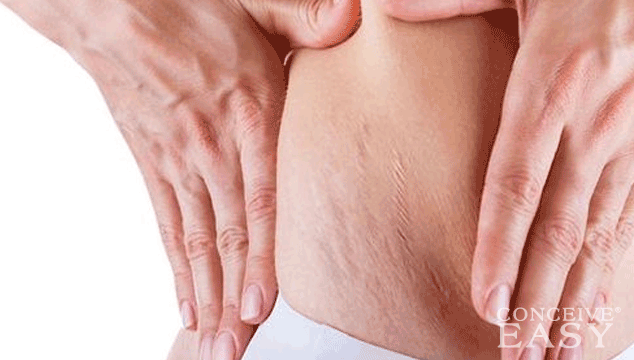 What is the Best Cream for Stretch Marks?