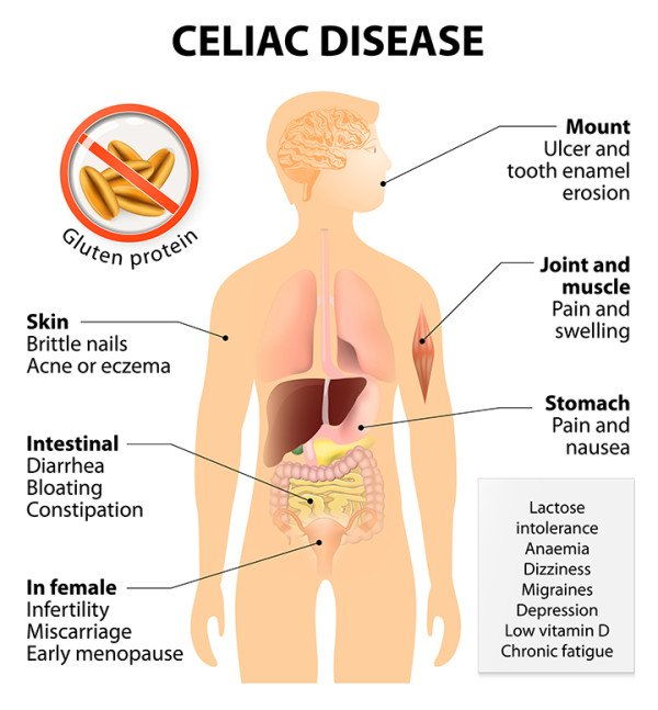 gluten free for fertility - celiac disease
