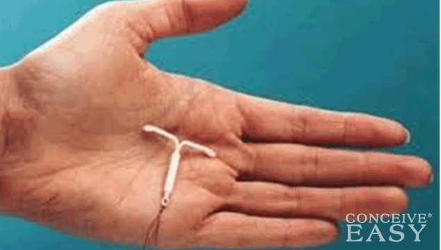 More U.S. Women Choosing IUDs for Birth Control