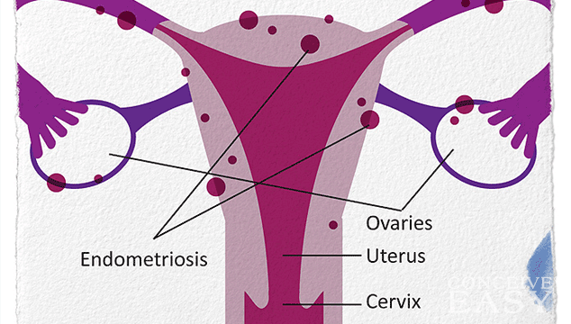 What Does It Mean To Have Endometriosis?