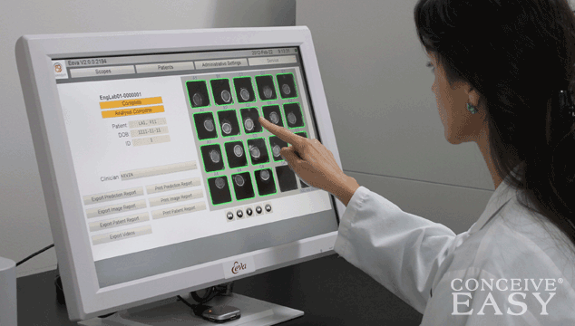 What is Early Embryo Viability Test (Eeva)?