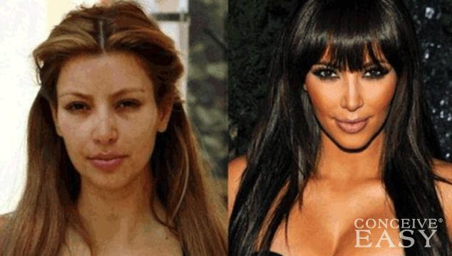 Kim Kardashian Willing to Use IVF to Get Pregnant Again