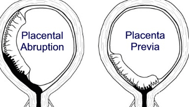 Trouble Getting Pregnant after Placental Abruption