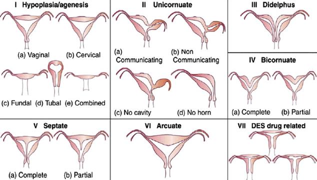 types of bicornuate uterus