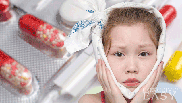 Home Remedies for Mumps