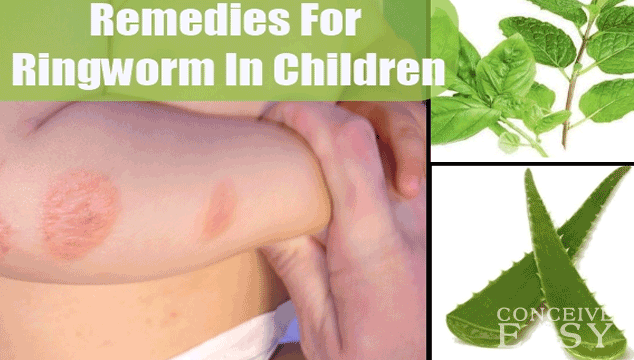 Home Remedies for Toddler Ringworm