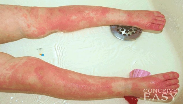 How to Treat a Child's Yeast Infection?