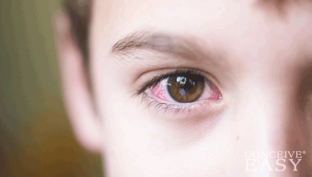 Home Remedies for Pink Eye for Infants