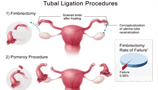 home-remedy-on-becoming-pregnant-after-tubal-ligation