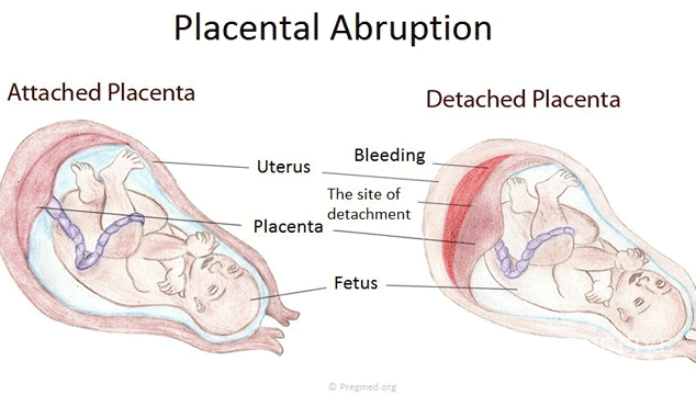 Abruptio Placenta in Early Pregnancy
