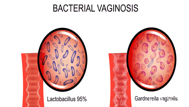 Bacterial Vaginosis Complications During Pregnancy