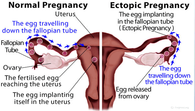 Ectopic Pregnancy vs Normal Pregnancy - ConceiveEasy.com