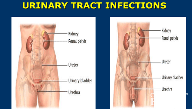 how to detect urinary tract infection