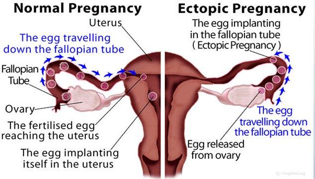 Ectopic Pregnancy vs Normal Pregnancy