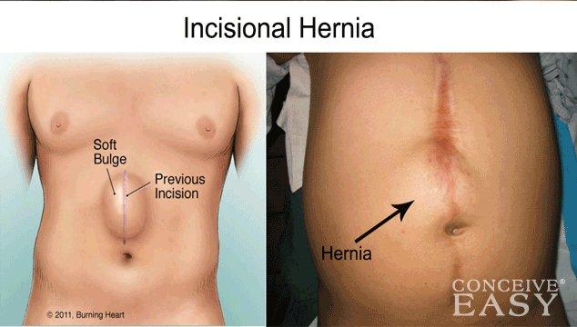 Hernia After Abdominal Surgery