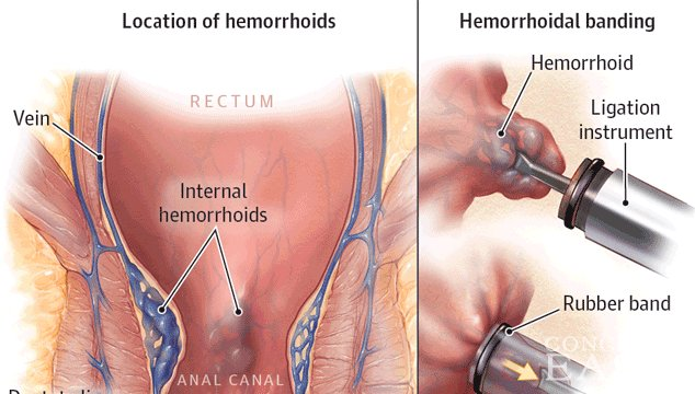 How Common are Hemorrhoids While Pregnant?