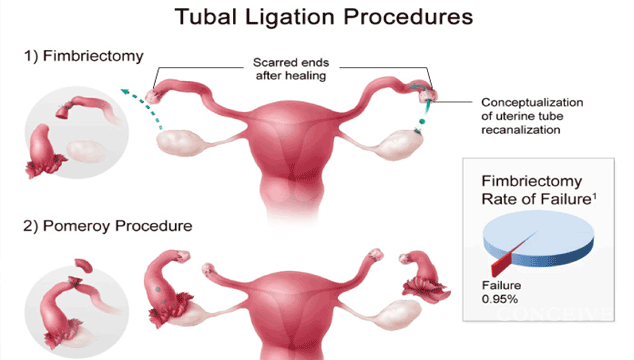 Can I Get Pregnant with Bilateral Tubal Ligation?