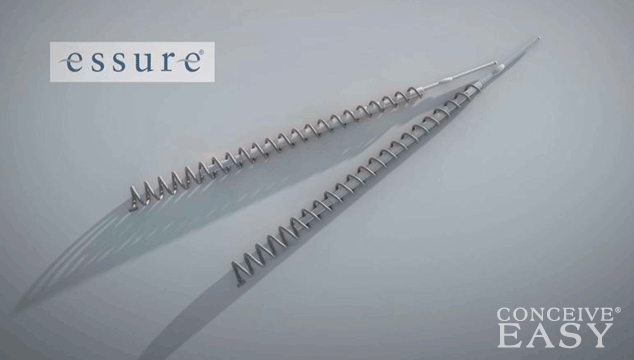 Can I get Pregnant with Essure?
