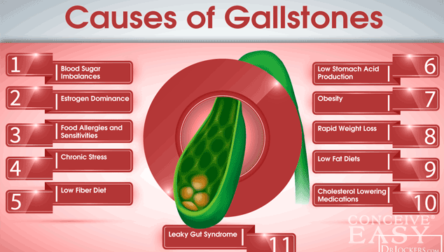 Can I Get Pregnant With Gallstones Conceiveeasy Com