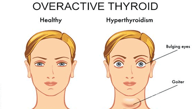 Can I get Pregnant with Overactive Thyroid?