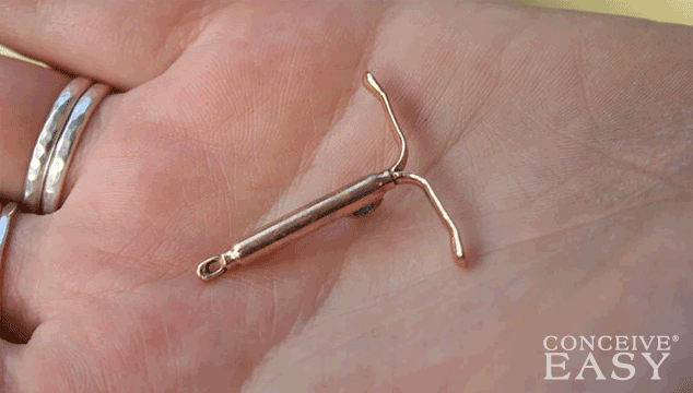 Difficulty Getting Pregnant after IUD