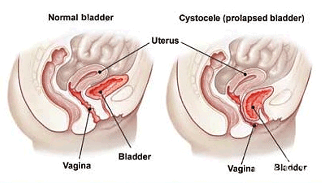 Getting Pregnant With A Prolapsed Uterus