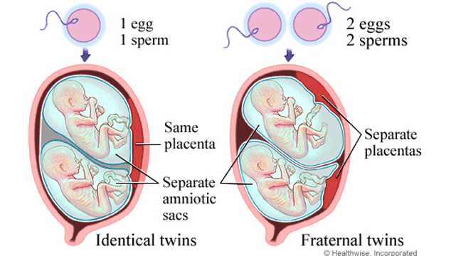 what's the difference between fraternal and identical twins?