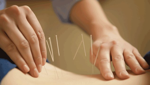 acupuncture as natural fertility treatment to get pregnant