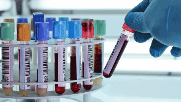 tests performed for infertility in women