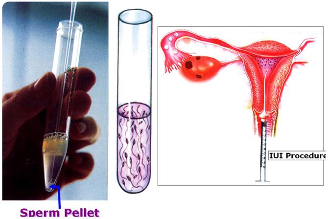 Intrauterine insemination (IUI) procedure and sperm washing
