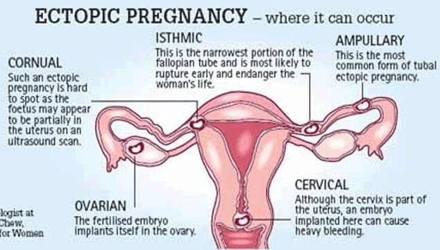 different types of ectopic pregnancy