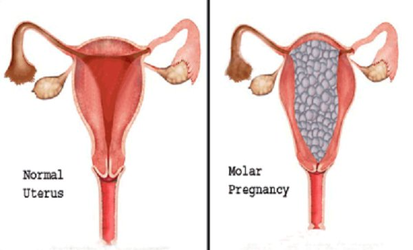 does molar pregnancy cause bleeding?