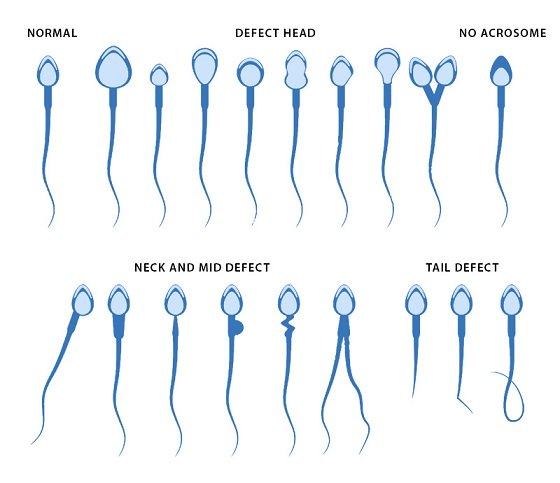 normal and defective sperms compared