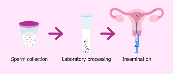 Intrauterine insemination process and procedure